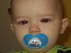 Doms_eye_surgery_003