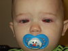 Doms_eye_surgery_005